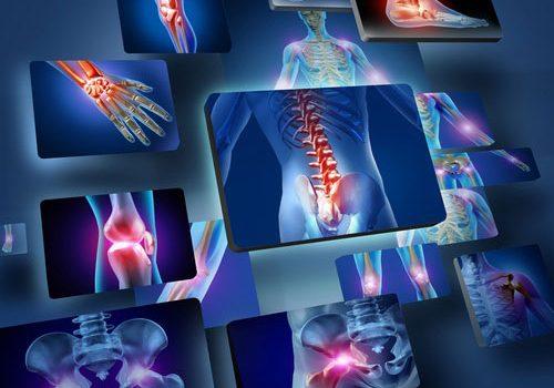 Articulaciones en Radiología