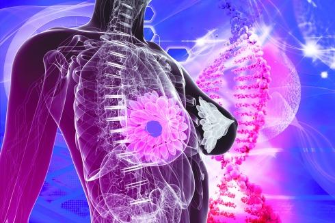 Detectar el cancer de mama con nano Sensores