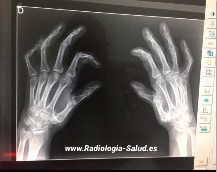 Dedo dislocado pulgar